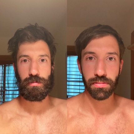 12 Before and after
